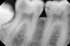Radiografia carie