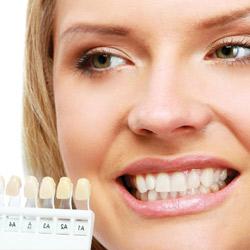 corone denti donna